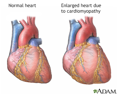 Heart transplant atlantic health hospitals serving normal anatomy ccuart Choice Image