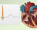 Electrocardiogram  - ECG - what the tracing tells your doctor